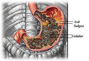 Gastrit nedenleri