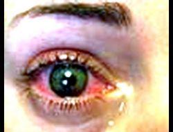 göz kanlanması tedavisi