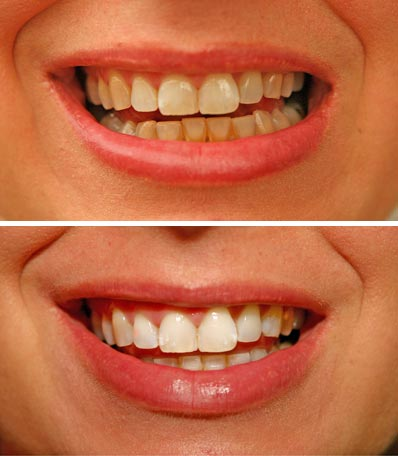 Как сделать зубы белыми без отбеливания