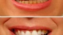 Diş estetiği ile diş beyazlatma